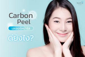 Carbon Peel เลเซอร์หน้าใส ดียังไง?